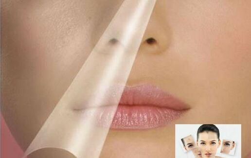 Tratament facial cu acid glicolic + AHA impotriva acneei la 49 lei