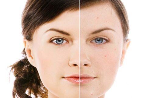 Tratament facial antirid cu Retinol pur